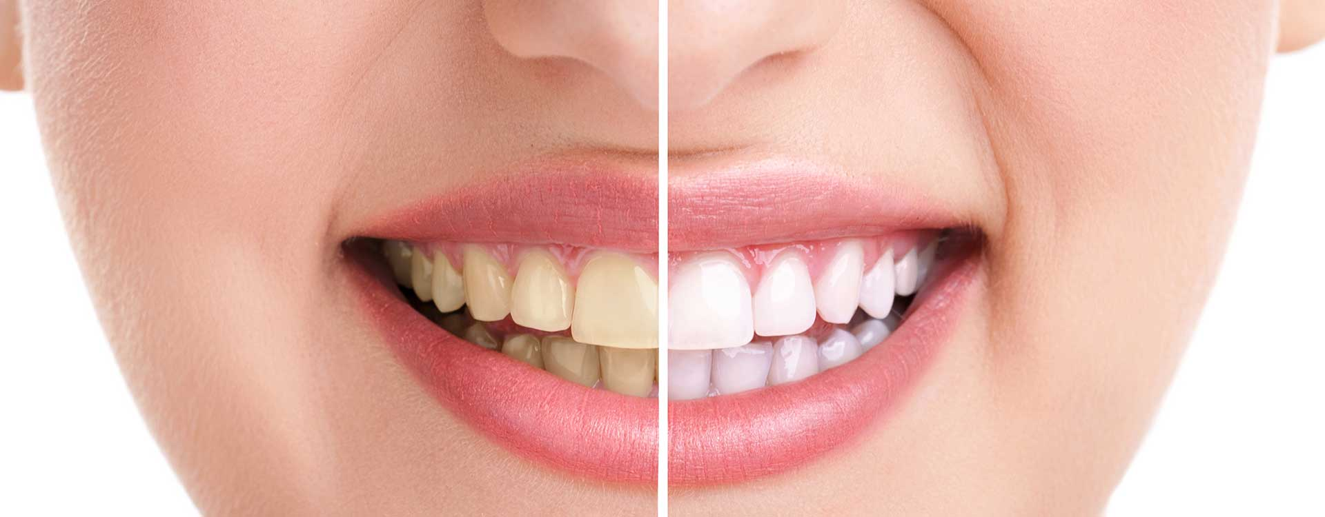 Copperstone Dental | FREE Teeth Whitening For Life