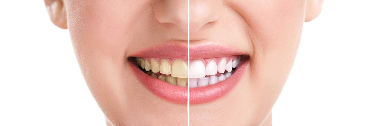 Copperstone Dental | Teeth Whitening For Life